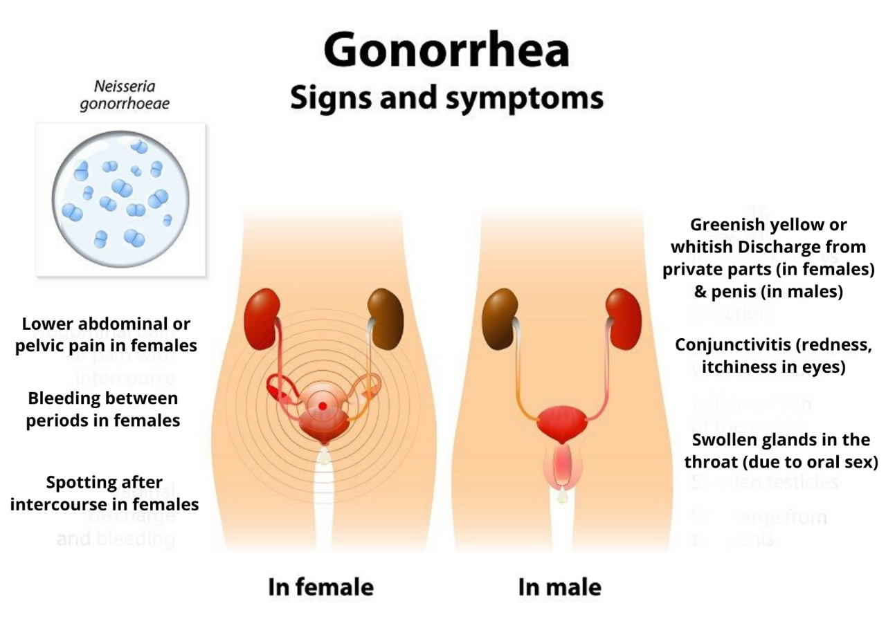 gonorrhea signs and symptoms image